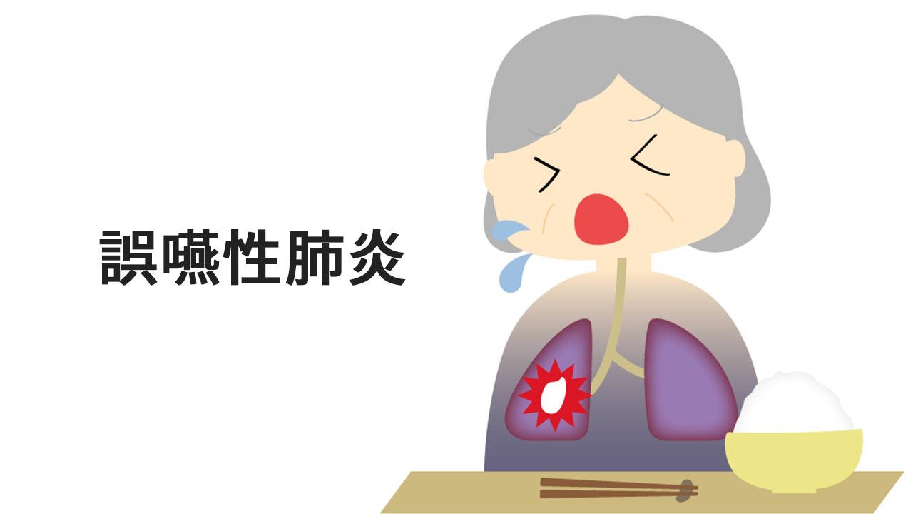 誤嚥性肺炎について-看護師は絶対マスター! 介護職はスキルアップ!